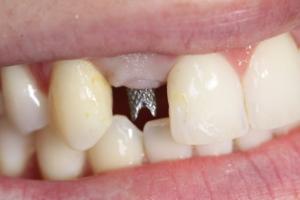 Uzupełnienia implantoprotetyczne w stomatologii