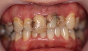 Uzupełnienia implantoprotetyczne u dentysty