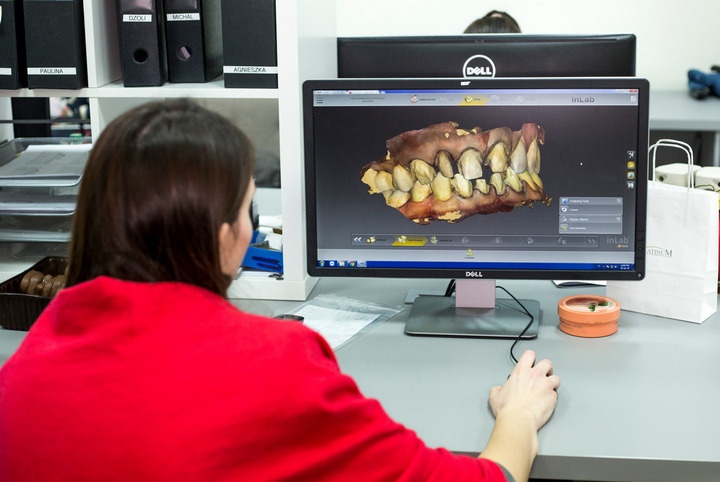 stomatologia cyfrowa cad cam