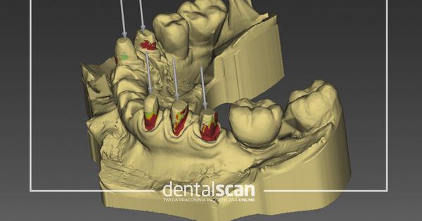 projektowanie cad cam zębów