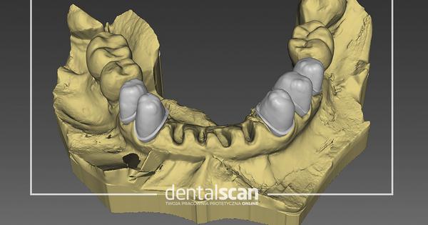 projektowanie zębów w programie exocad