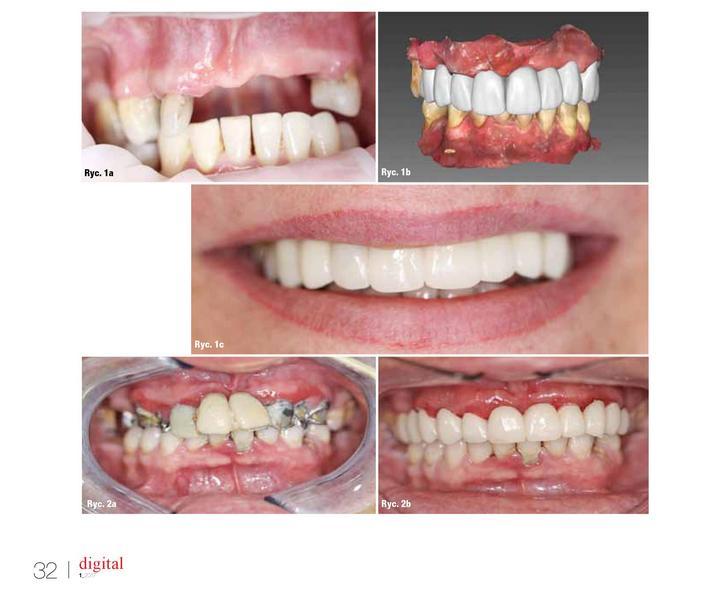 metamorfozy zębów