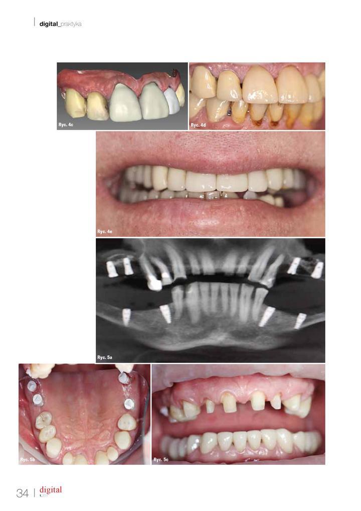 jakie jest zastosowanie skanera w stomatologii cyfrowej