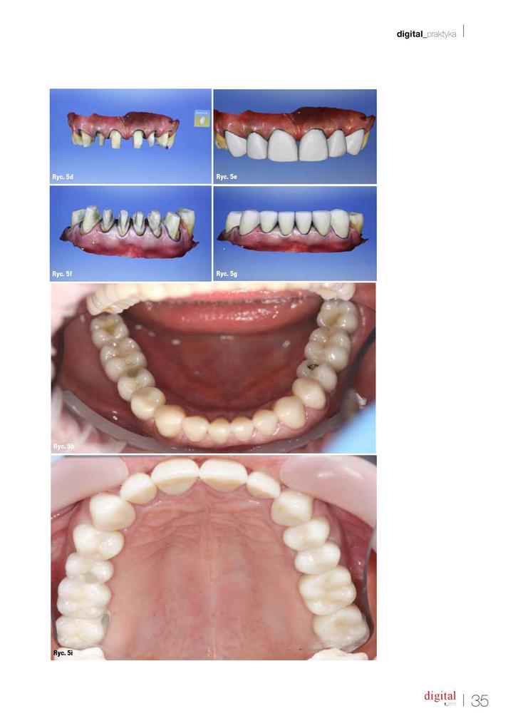 obraz zębów przed i po