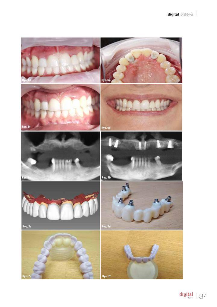 skaner ortodontyczny