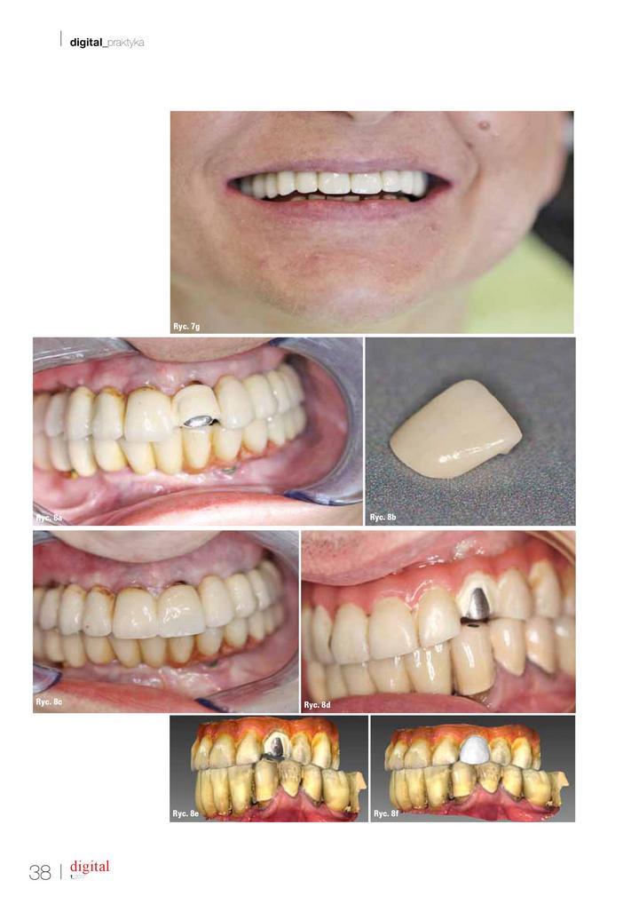 skaner dentystyczny