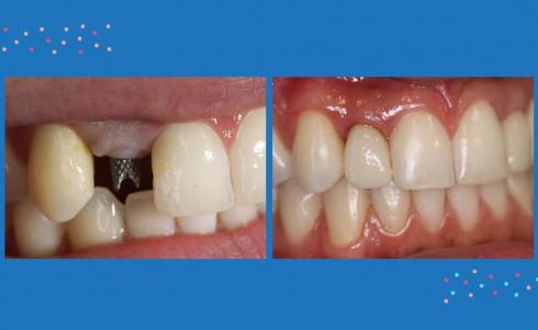 Technologia CAD/CAM: Wykorzystanie skanera wewnątrzustnego do wykonania wysokoestetycznych prac na implantach w strefie estetycznej  po leczeniu ortodontycznym