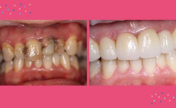Leczenie kompleksowe z użyciem skanera dentystycznego i technologii CAD/CAM – opis przypadku