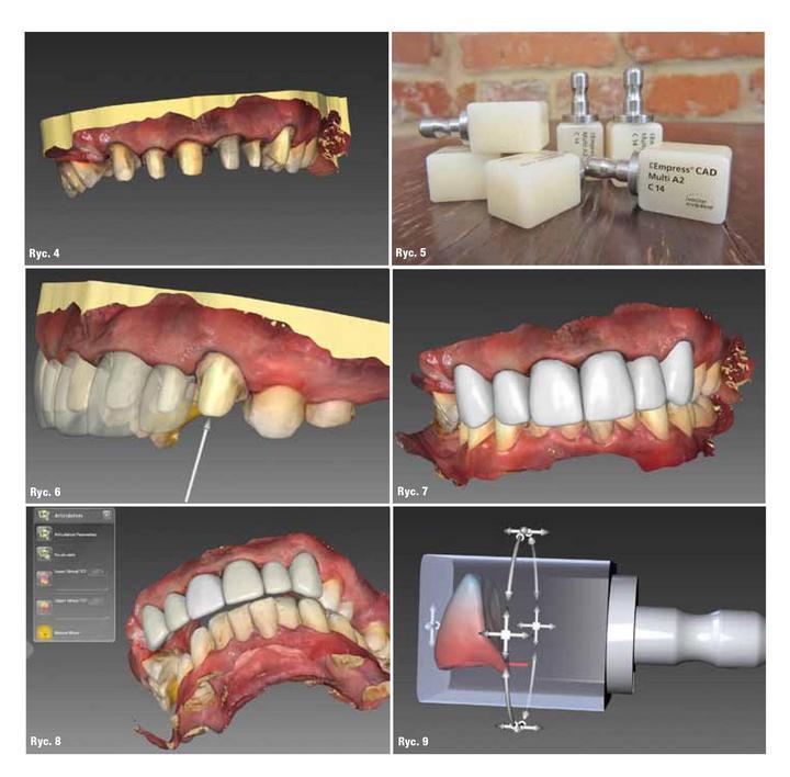 projektowanie uzębienia za pomocą skanera dentystycznego
