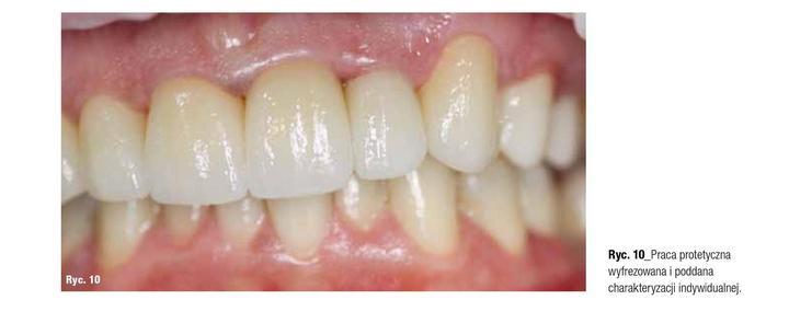 jak wygląda leczenie zębów z użyciem skanera dentystycznego