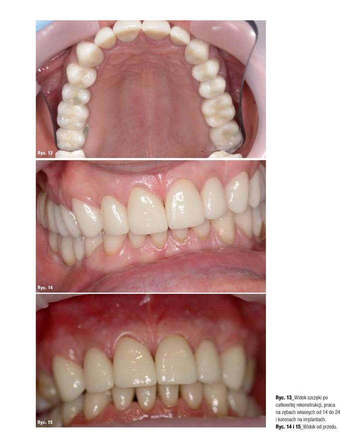 widok zębów z koronami 3d