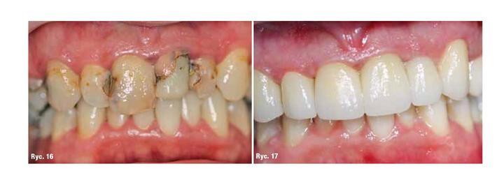 zęby przed i po leczeniu za pomocą skanera wewnątrzustnego