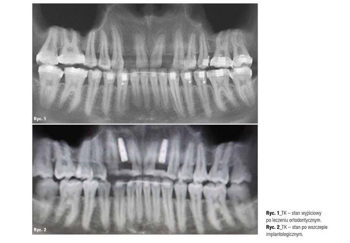 stan wyjściowy po leczeniu ortodontycznym