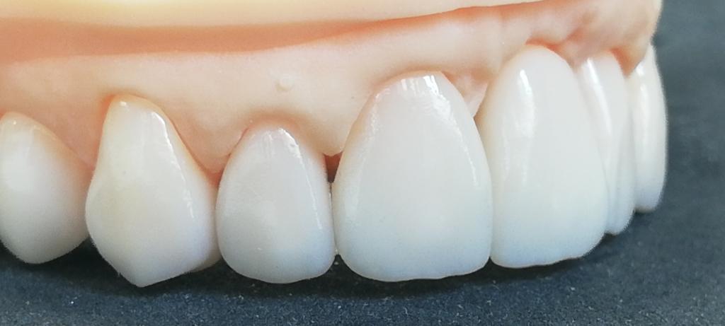 cyfrowe zęby