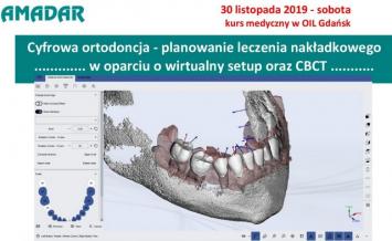 Cyfrowa ortodoncja – planowanie leczenia nakładkowego