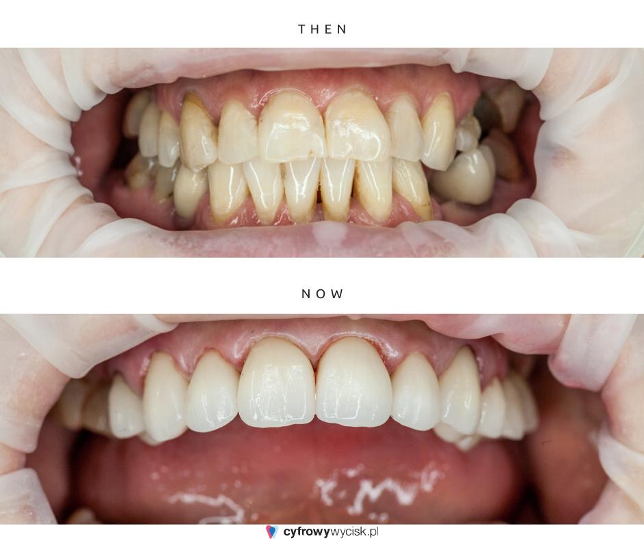 metamorfoza stomatologiczna