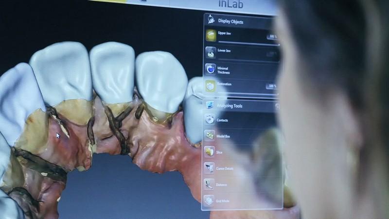 technik dentystyczny cad/cam