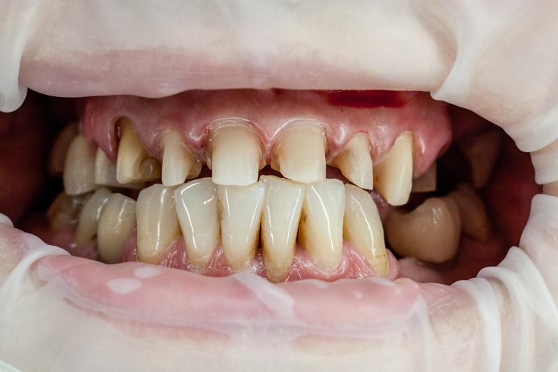 zeszlifowane zęby