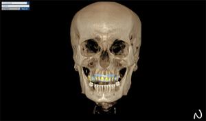 szkolenie cad/cam dla techników dentystycznych