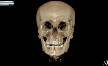 Szkolenie CAD/CAM dla techników dentystycznych Open Your Mind Step 3