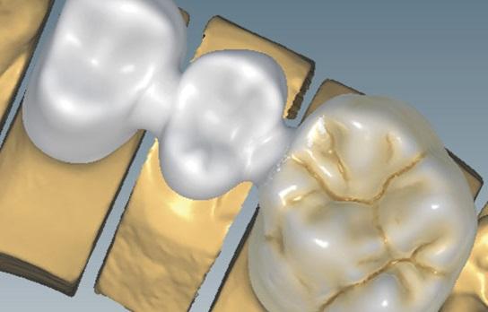 Szkolenie EXOCAD Basic – warsztaty z technikiem dentystycznym Jackiem Świecimskim